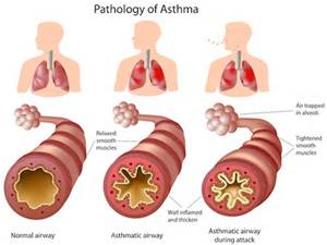 asthma lungs